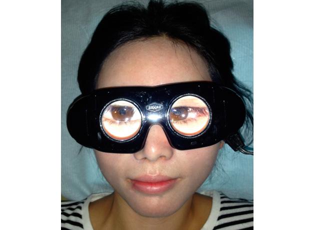 フレンツェル眼鏡を かけると、眼が拡大され ます。眼鏡をかけている 人からは、外界には視点 があわず、ぼんやりと見え、 眼の運動の異常が現われ やすくなります。