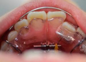 右の前歯が内側にあるので、写真の装置を使用して、歯を動かしていく。